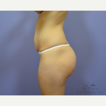 25-34 year old woman treated with Tummy Tuck before 3422016