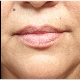45-54 year old woman treated with Lip Augmentation before 3280198