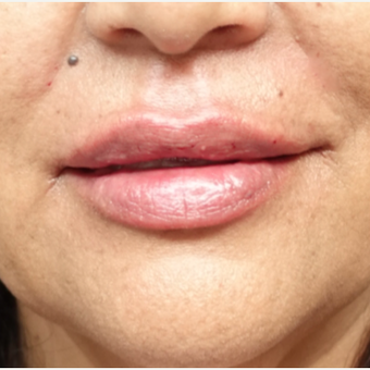 45-54 year old woman treated with Lip Augmentation after 3280198