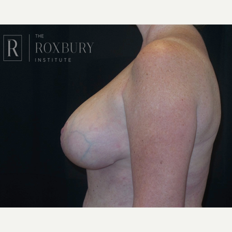 35-44 year old woman treated with Breast Lift after 3844306