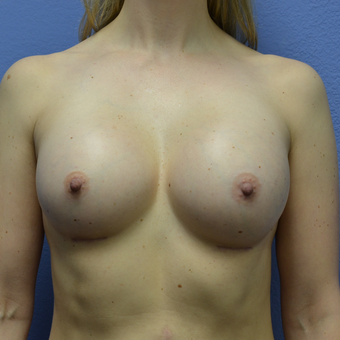 35-44 year old woman treated with Breast Augmentation after 3085355