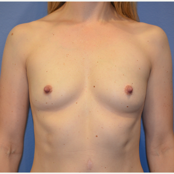 35-44 year old woman treated with Breast Augmentation before 3085355
