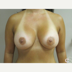Breast Implants after 3373670