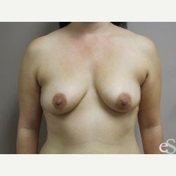 Breast Implants before 3373670