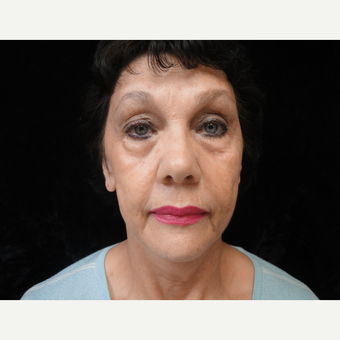 55-64 year old woman treated with Facelift before 3823320