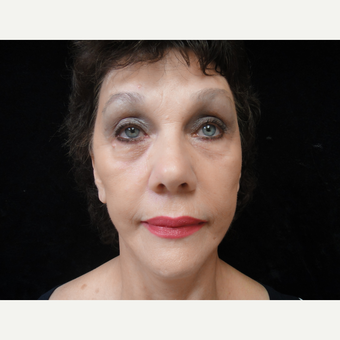 55-64 year old woman treated with Facelift after 3823320