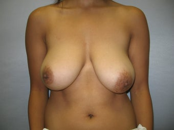 21 y.o woman with breast reduction by Dr. Lyle, Plastic Surgeon, Raleigh, North Carolina before 995331