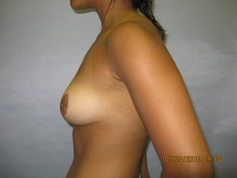 21 y.o woman with breast reduction by Dr. Lyle, Plastic Surgeon, Raleigh, North Carolina 995331