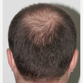 33 years old man treated with FUE Hair Transplant before 3068913
