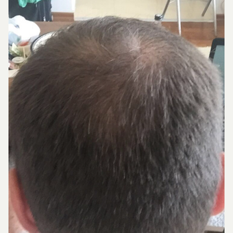33 years old man treated with FUE Hair Transplant after 3068913