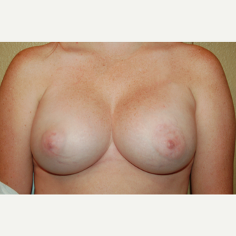 25-34 year old woman treated with Breast Augmentation after 3018896