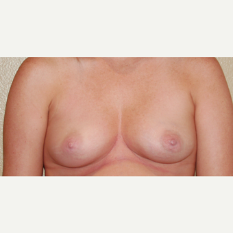 25-34 year old woman treated with Breast Augmentation before 3018896