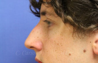 Nonsurgical Rhinoplasty with Juvederm Filler to augment the upper nose bridge to mask the dorsal hump.