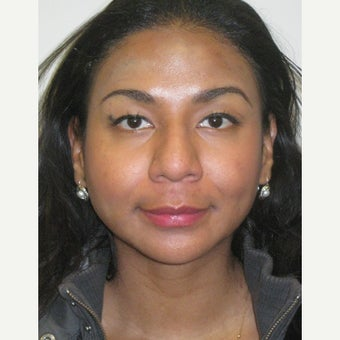 25-34 year old woman treated with African American Rhinoplasty before 2225769