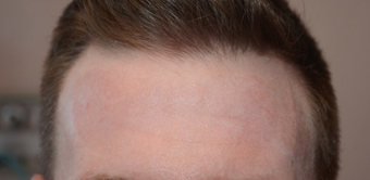 25-34 year old man treated with Chemical Peel after 1556994