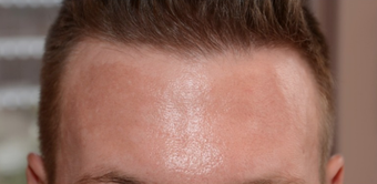 25-34 year old man treated with Chemical Peel before 1556994