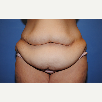 35-44 year old woman treated with Tummy Tuck before 3763413