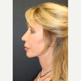 55-64 year old woman treated with Revision Rhinoplasty 1799565
