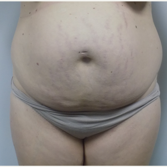 Tummy Tuck before 3033108