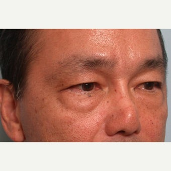 40 year old man treated with Eye Bags Treatment (lower blepharoplasty)