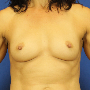 45-54 year old woman treated with Fat Transfer after 3748268