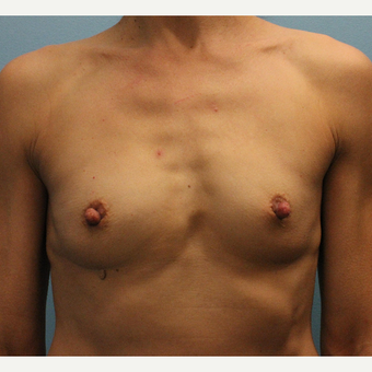 45-54 year old woman treated with Fat Transfer before 3748268
