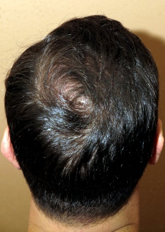 FUE hair transplantation - crown restoration no linear scars after 1100478