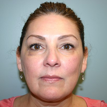 49 year old woman treated with Facelift before 3442655