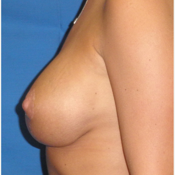 35-44 year old woman treated with Breast Implant Revision after 3071243