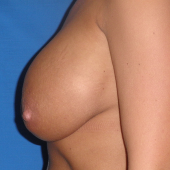35-44 year old woman treated with Breast Implant Revision before 3071243