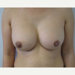 Breast Augmentation after 3054873