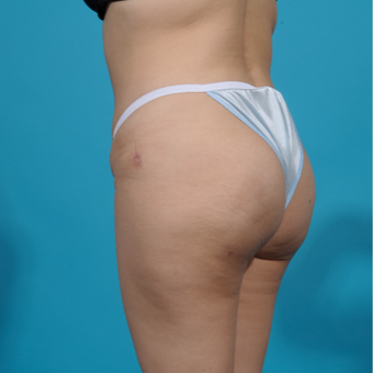 25-34 year old woman treated with Brazilian Butt Lift after 3292862