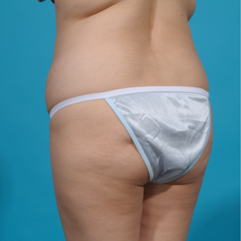 25-34 year old woman treated with Brazilian Butt Lift before 3292862
