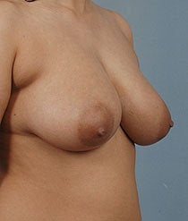 Breast Reduction 481113