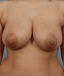 Breast Reduction before 481113