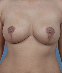 Breast Reduction after 481113