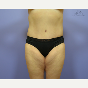 35-44 year old woman treated with Liposuction after 3421349