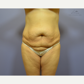 35-44 year old woman treated with Liposuction before 3421349