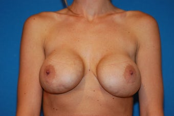 25-32 year old female, Breast Lift and Implant Exchange with Silicone. RT 600cc LT 600cc.  Mentor. before 106505