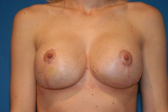 25-32 year old female, Breast Lift and Implant Exchange with Silicone. RT 600cc LT 600cc.  Mentor. after 106505
