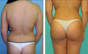 Liposuction Before & After  after 1110865