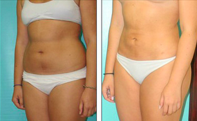 Liposuction Before & After  before 1110865