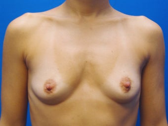 40 year old mother of two, three months after breast augmentation before 1411910