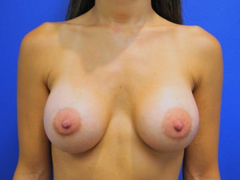 40 year old mother of two, three months after breast augmentation
