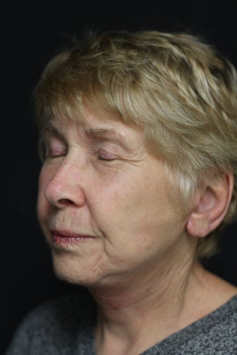 75 year old female, Facelift and Necklift 1374217