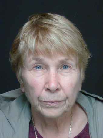 75 year old female, Facelift and Necklift before 1374217