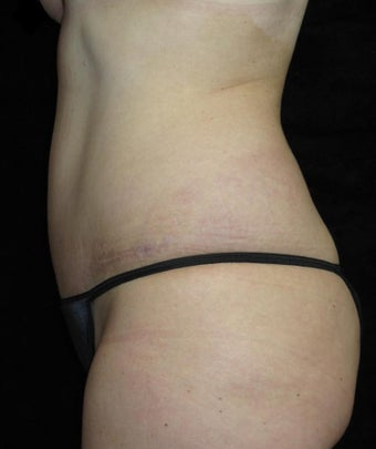 45-54 year old woman treated with Tummy Tuck 3252387