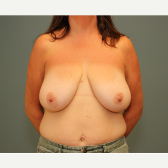 45-54 year old woman treated with Breast Reduction before 3630230