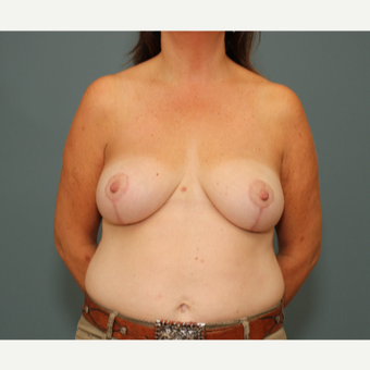 45-54 year old woman treated with Breast Reduction after 3630230