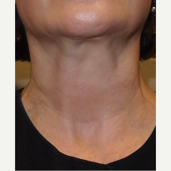 Neck bands treated with botox before 3664213